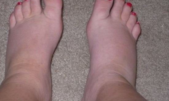 swelling-and-edema