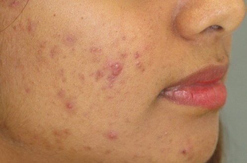 acne-and-pimples