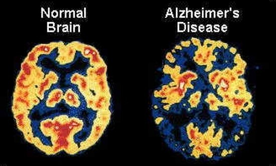 memory-loss-and-alzheimers-dementia